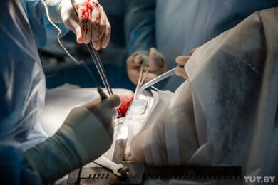 В Минздраве предположили, что COVID-19 может тормозить опухолевый рост идаже излечивать онкопациентов
